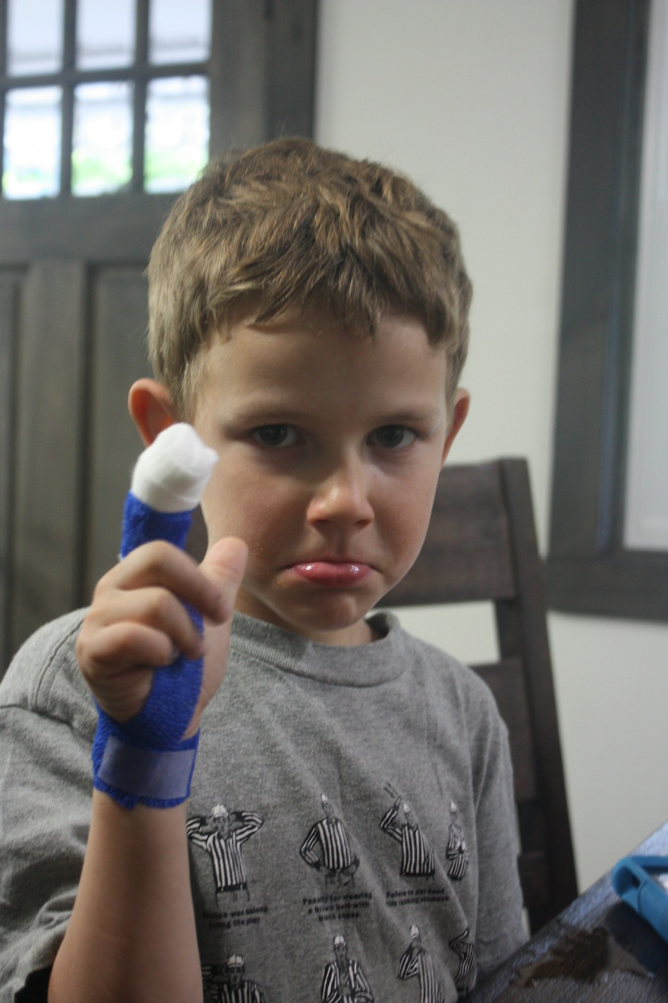 Mangled Fingers, ER Visits, And Herbal Wound Care | Growing Up Herbal | Today I'm sharing how my kiddo cut his finger off and how we're managing the wound with herbs.