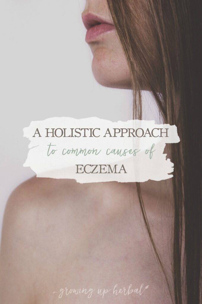 A Holistic Approach To Common Causes of Eczema   Growing Up Herbal   Do you or someone you know suffer from eczema? Learn today how to take a holistic approach to eczema and find the healing you need!
